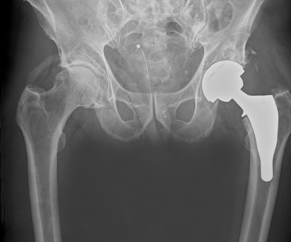 Hip replacement X-ray after