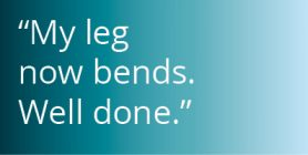 Revision knee replacement case study