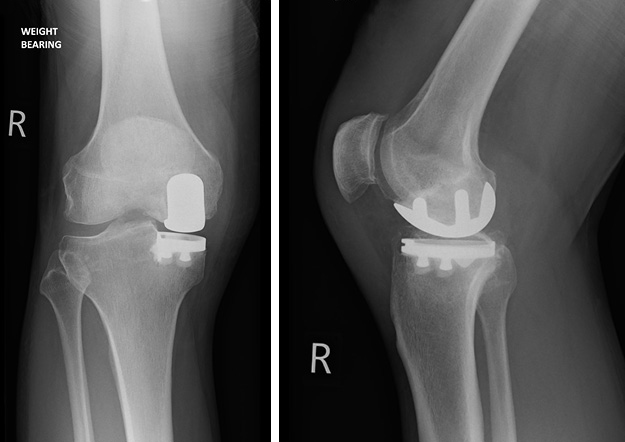 Knee replacement X-ray after